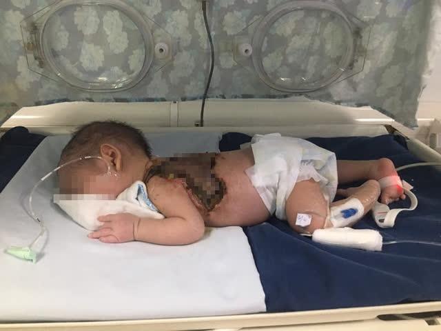 Người nhà lấy kim khâu chích mụn, bé sơ sinh 15 ngày tuổi bị hoại tử da, nhiễm trùng huyết - Ảnh 1.