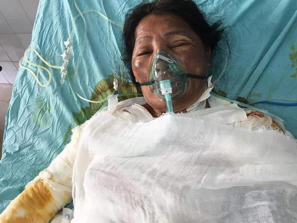 Chồng bị thần kinh, vợ đang nguy kịch vì bỏng nặng rất cần sự giúp đỡ - Ảnh 3.