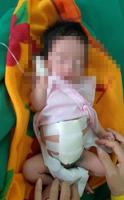 Nghệ An: Cứu sống bé sơ sinh có nội tạng nằm ngoài ổ bụng - Ảnh 3.