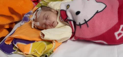 Xin hãy cứu sự sống của bé 5 tháng tuổi đang đau đớn vì bệnh tắc ruột bẩm sinh - Ảnh 2.