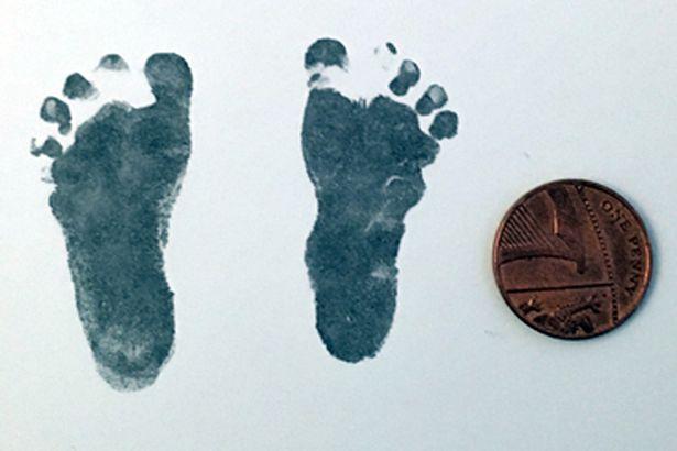Sinh con chỉ nặng hơn 600gr, cặp vợ chồng được khuyên từ bỏ hy vọng nhưng vài năm sau, đứa trẻ khiến bác sĩ sốc toàn tập - Ảnh 4.