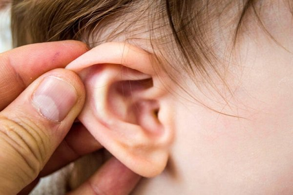 Cách nhận biết viêm tai giữa cấp - Ảnh 1.