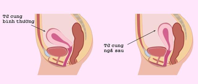 Tử cung ngả sau ảnh hưởng đến thai kỳ? - Ảnh 1.