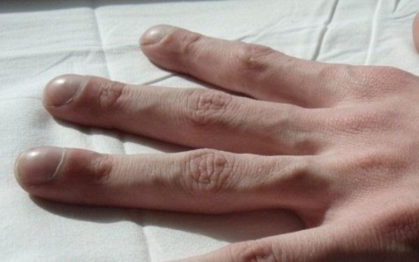 4 triệu chứng trên ngón tay cho thấy chất độc trong cơ thể đang bùng phát: Đi khám gan, phổi ngay kẻo muộn - Ảnh 1.