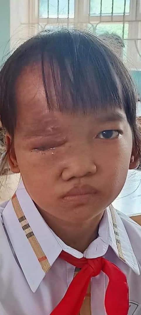 Khối u trên cơ thể ngày một lớn, bé gái dân tộc nghèo mong có tiền để được phẫu thuật sớm - Ảnh 3.