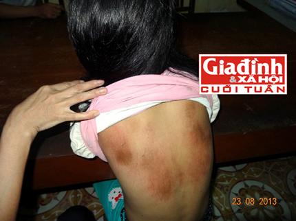 Nhục dục đê hèn khiến ba trai làng mai phục hại đời thiếu nữ thiểu năng 2