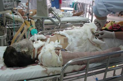 Vụ thiếu nữ bị thiêu sống ở Đà Nẵng: Đám cưới hụt và nỗi đau dang dở 1