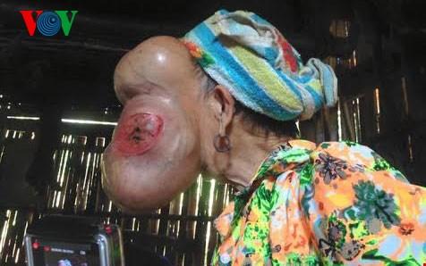 Chiếc mụn cơm nhỏ đã biến thành khối u khổng lồ, làm biến dạng gương mặt người phụ nữ. (Ảnh: VOV)