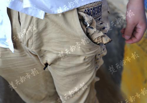 Túi quần của anh Trương cũng bị cháy một mảng