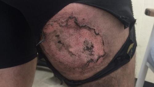 Anh Clear đã bị bỏng cấp độ 3 sau khi chiếc iPhone 6 trong túi quần bỗng nhiên phát nổ.
