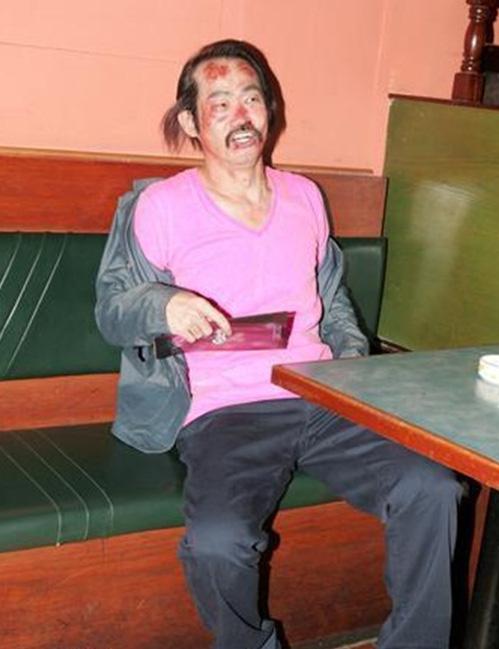 Ở tuổi 62, Nguyên Hoa chật vật kiếm sống, bị thương với thù lao bèo bọt