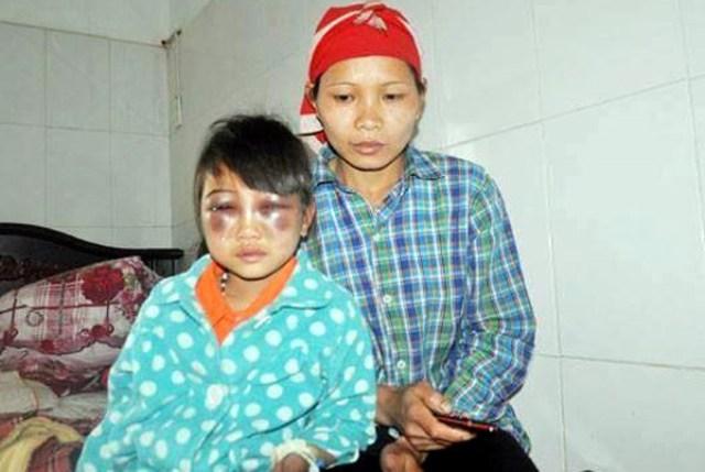 Cháu Phàn Chung T. được mẹ chăm sóc tại bệnh viện. (Ảnh: Laocaionline)