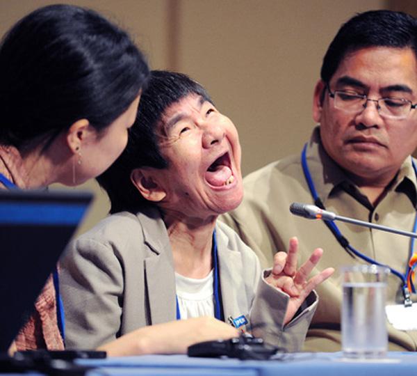 Một nạn nhân mắc bệnh Minamata. Nguồn: Internet