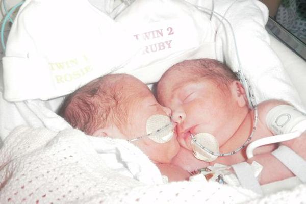 Cặp song sinh dính liền khi mới chào đời năm 2012. Ảnh: PA