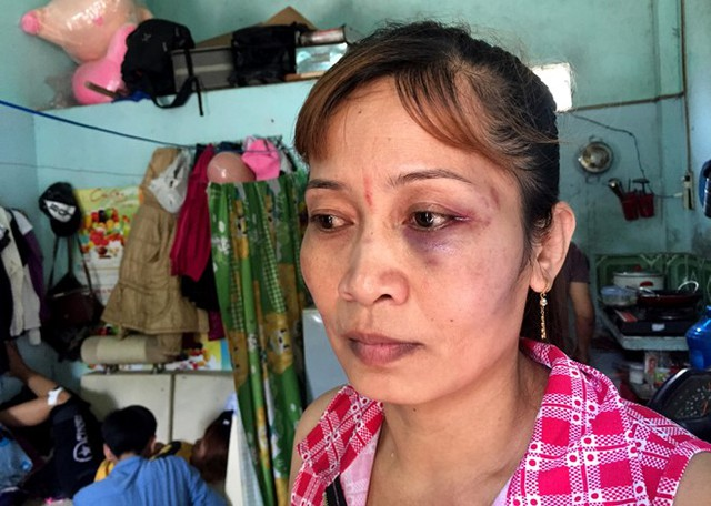 Bà Dung bị đánh bầm mắt trái, vùng mặt sưng vù. Ảnh: Lê Trai