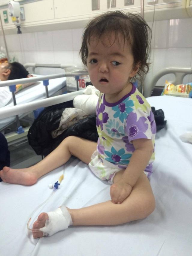 Cơ thể cháu Quỳnh Anh gần như biến dạng vì hội chứng bệnh apert