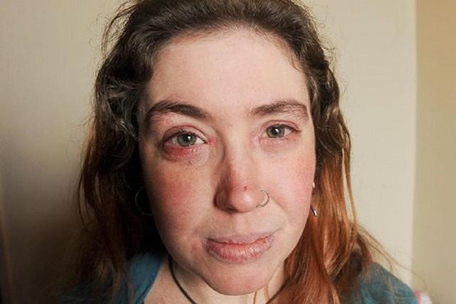 Thị lực của Liz trở nên yếu sau nhiều lần phẫu thuật cấy ghép giác mạc. Ảnh: