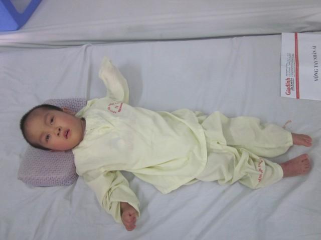 Hiện bé Đức Thắng phải điều trị ở cả BV Châm cứu TƯ và BV lao phổi