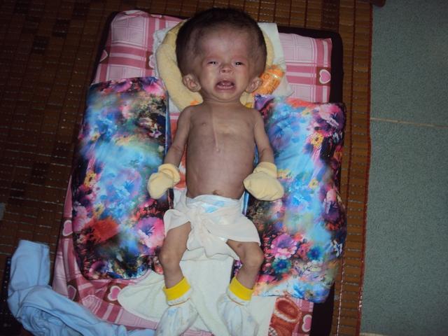 Mới 3 tháng tuổi Bảo Anh đã phải chịu nỗi đau của bệnh não úng thủy