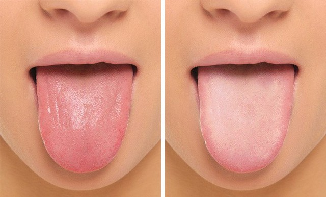 Nồng độ myoglobin thấp có thể làm cho lưỡi bị đau, nhẵn và sưng.