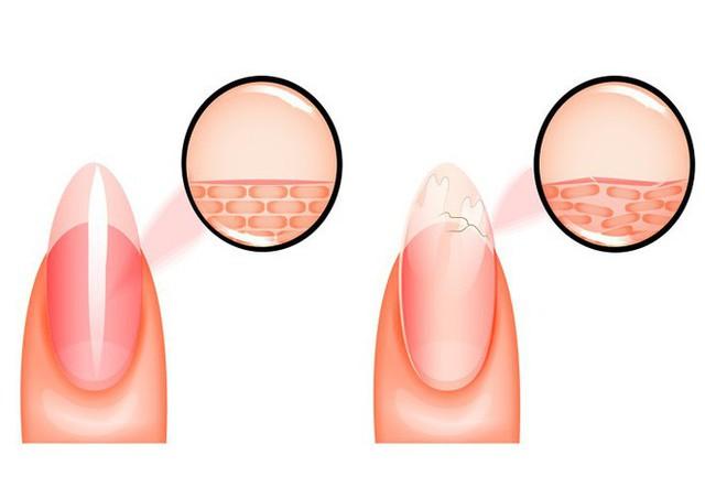 Koilonychia là một bệnh móng tay trong đó móng trở nên mỏng bất thường và trở nên phẳng hoặc thậm chí lõm về hình dạng