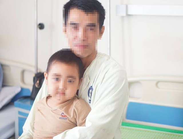 Bé N.T.D (5 tuổi, ở Sơn La) bỗng nhiên mặt nặng, nổi ria mép sau vài mũi tiêm corticoid ở phòng khám tư. Ảnh: BVCC