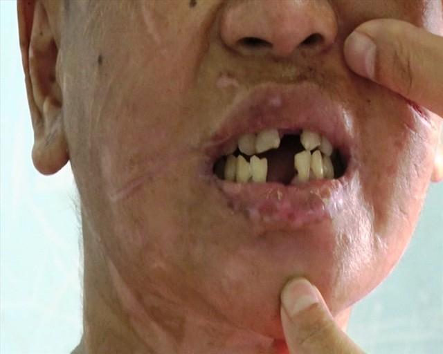 Y Nhiêu khai bị bà Hà tra tấn bằng cách dùng kìm bẻ răng
