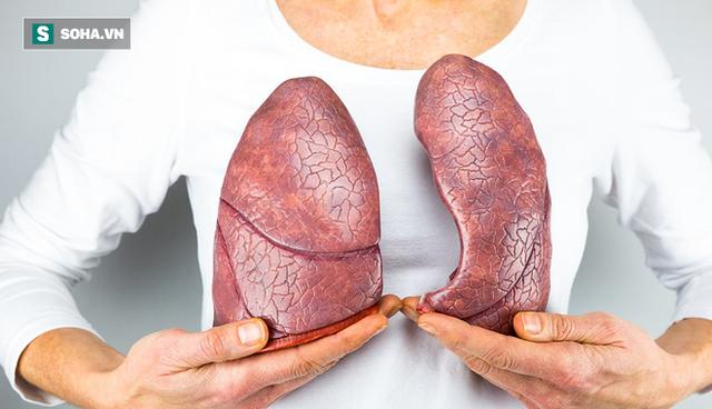 4 việc quan trọng phải làm để ngăn ung thư phổi: Tiếc rằng nhiều người biết quá muộn - Ảnh 1.