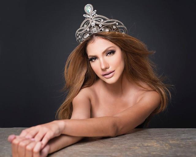 Hình thể bốc lửa của tân Hoa hậu Hòa bình 19 tuổi, cao 1,84 m - Ảnh 5.