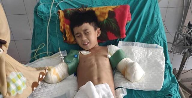 Mất đôi tay, cậu bé 12 tuổi bị điện giật chỉ mong giữ được đôi chân - Ảnh 4.