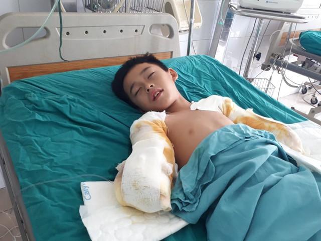 Mất đôi tay, cậu bé 12 tuổi bị điện giật chỉ mong giữ được đôi chân - Ảnh 3.