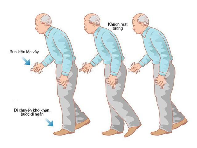 Người cao tuổi bị Parkinson nên biết những điều này - Ảnh 1.
