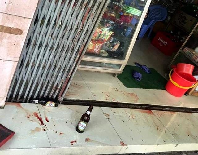 Hải Dương: Đang ngồi uống bia, nam thanh niên bị đâm trúng lưng - Ảnh 1.
