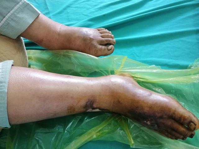 Bệnh nhân Hờ A Trừ đang cấp cứu do nhiễm khuẩn huyết, do 2 tháng trước bị phù, loét bàn chân phải, chảy nhiều dịch vàng. Ảnh: BV đa khoa Điện Biên.
