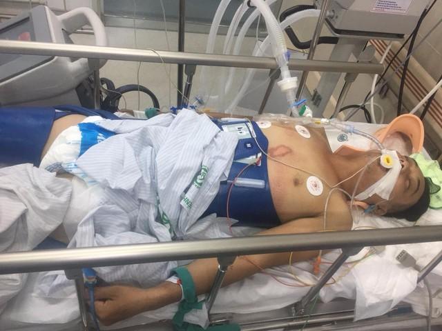 Hoàn cảnh thương tâm của người đàn ông nguy kịch vì điện giật, mẹ già cùng 3 đứa con bệnh tật không tiền điều trị - Ảnh 1.