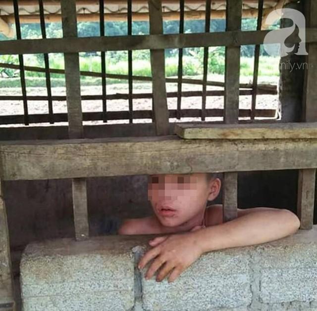 Đằng sau bức ảnh bé trai 13 tuổi trần truồng, bị ông nội cột dây, nhốt trong chuồng là một câu chuyện đầy thương cảm - Ảnh 1.