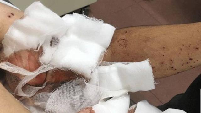 Manh mối về kẻ dùng súng tự chế bắn trọng thương người dân ở Bắc Giang - Ảnh 1.