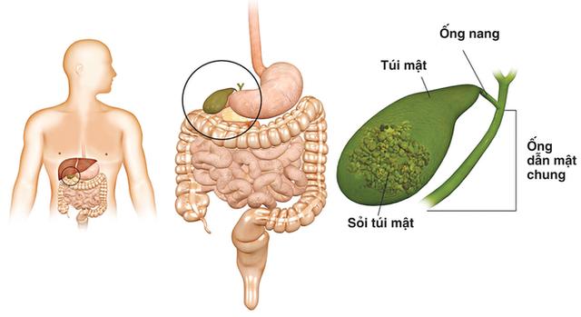Lạc là món ăn rất tốt cho sức khỏe, nhưng 4 nhóm người này lại không nên ăn - Ảnh 3.