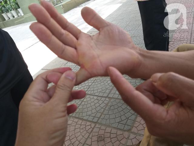 Bố của bé trai 10 tuổi bị người thân chém đứt lìa bàn tay ở Bắc Giang: Giờ tôi chưa dám lại nhìn con - Ảnh 3.