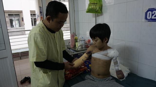 Cậu bé cụt hai tay sau điện giật Nguyễn Nhật Long phải ăn Tết ở bệnh viện - Ảnh 2.