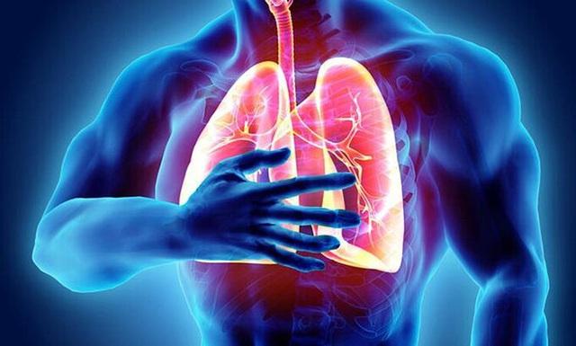 Cảnh báo phổi mắc bệnh từ triệu chứng ho khạc đờm - Ảnh 1.