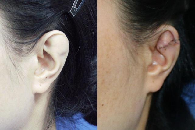 Người phụ nữ giấu chồng về đôi tai dị tật suốt 15 năm - Ảnh 1.