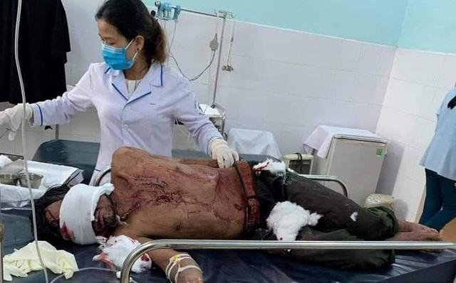 Tin mới vụ người đàn ông bị gấu rừng tấn công ở Quảng Nam - Ảnh 1.