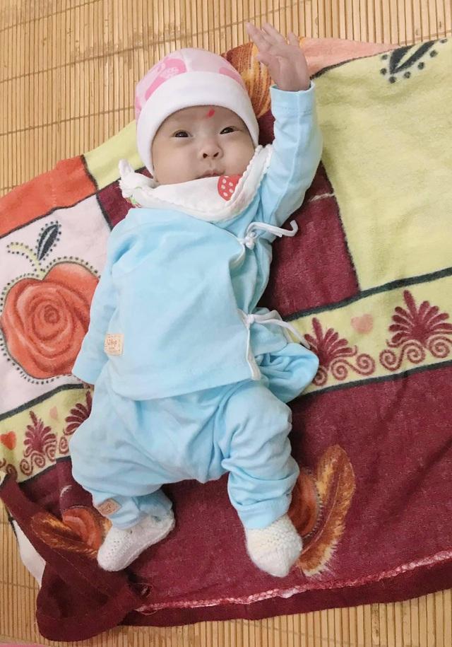 Hành trình như một giấc mơ của bé sinh non nhẹ cân nhất Việt Nam - chào đời chưa được 5 lạng - Ảnh 2.