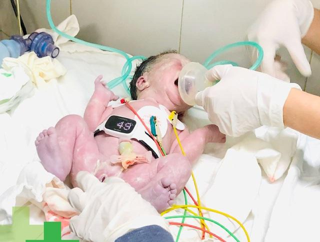 Những điều mẹ cần làm trong thai kỳ để tầm soát dị tật tim bẩm sinh - Ảnh 2.