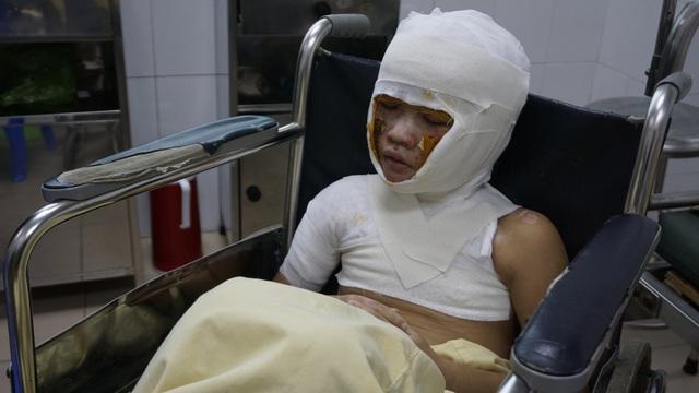 Bị bỏng xăng nặng cậu bé 8 tuổi đón Tết buồn trong bệnh viện - Ảnh 1.