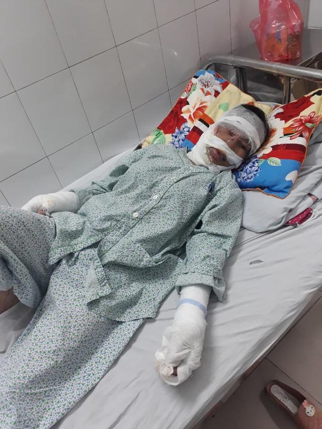 Xót xa mẹ đơn thân nghèo bị bỏng nặng xin về nhà vì không có tiền điều trị - Ảnh 2.