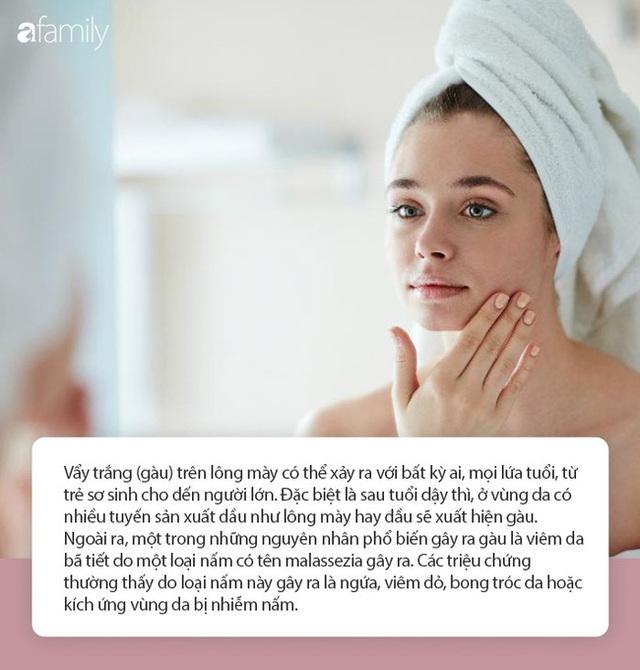 Ít ai biết rằng những thay đổi trên lông mày cũng là dấu hiệu cho thấy sức khỏe đang có vấn đề, đặc biệt là lão hóa sớm - Ảnh 4.
