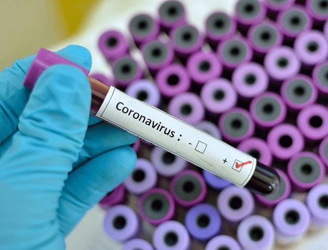 Chuyên gia lý giải vì sao có những bệnh nhân xét nghiệm âm tính rồi lại dương với SARS-CoV-2 - Ảnh 2.