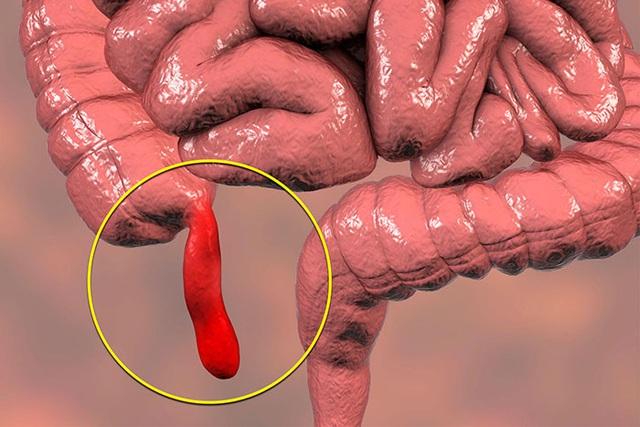 3 dấu hiệu cảnh báo cơn đau bụng bất thường này, hãy đến bệnh viện ngay kẻo hối không kip - Ảnh 1.